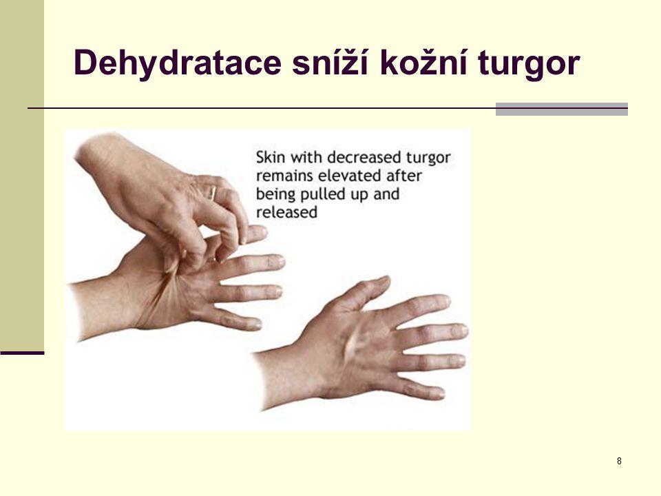 Dehydratace sníží kožní turgor