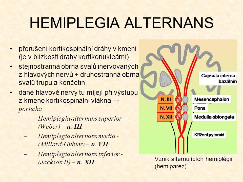 HEMIPLEGIA ALTERNANS přerušení kortikospinální dráhy v kmeni (je v blízkosti dráhy kortikonukleární)