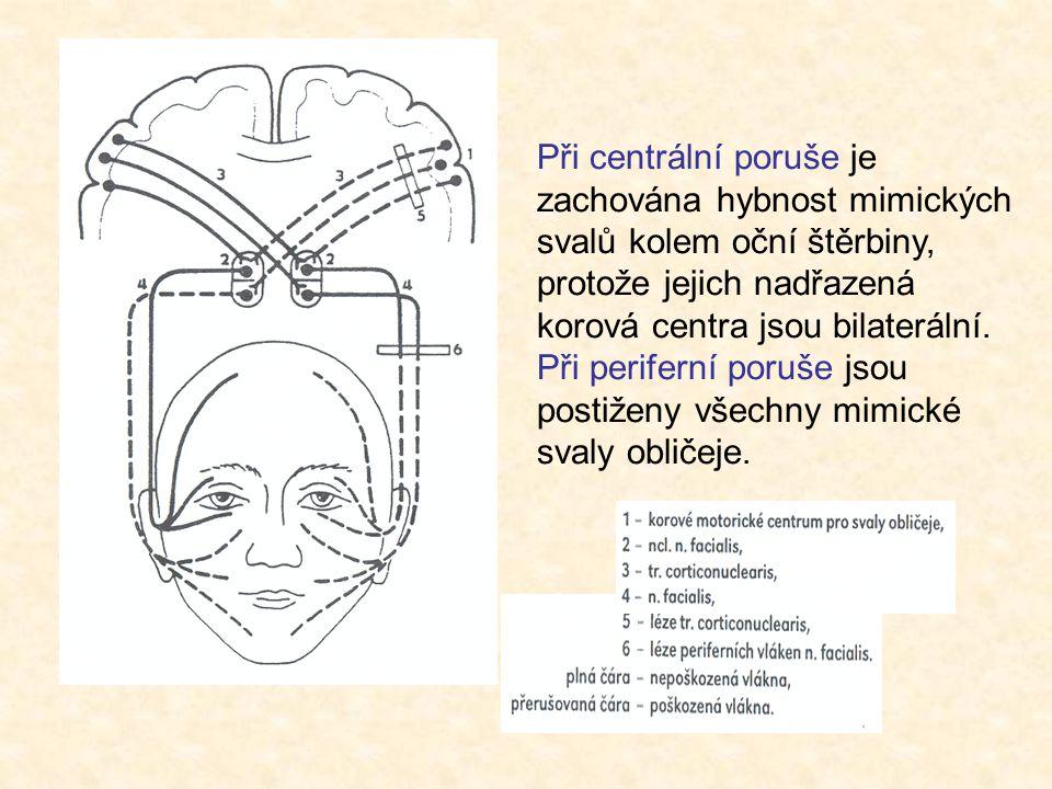 Při centrální poruše je zachována hybnost mimických svalů kolem oční štěrbiny, protože jejich nadřazená korová centra jsou bilaterální.