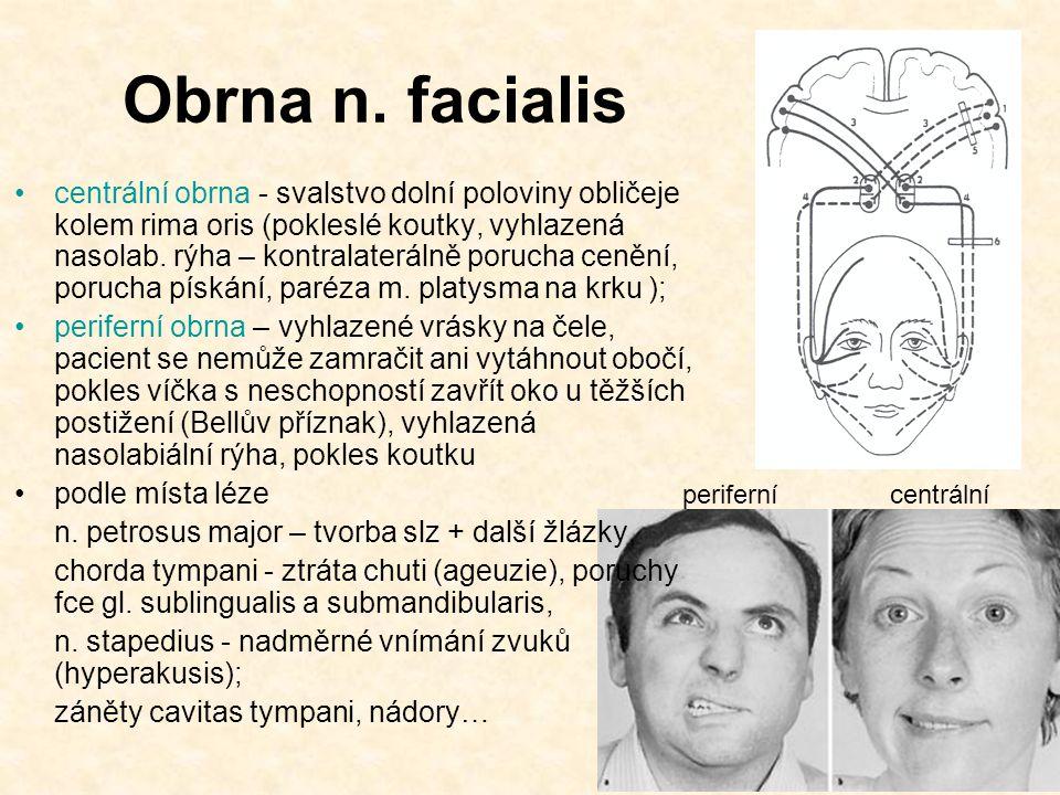 Obrna n. facialis