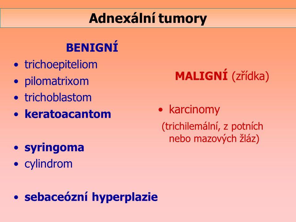 Adnexální tumory BENIGNÍ trichoepiteliom pilomatrixom trichoblastom