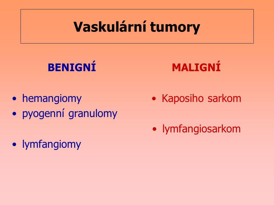 Vaskulární tumory BENIGNÍ hemangiomy pyogenní granulomy lymfangiomy