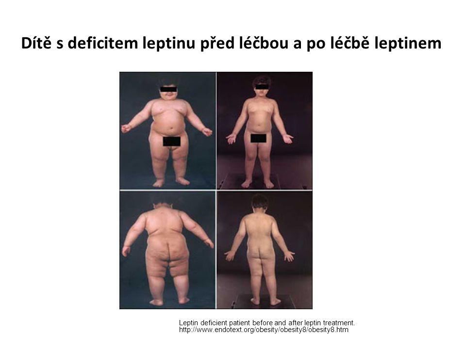 Dítě s deficitem leptinu před léčbou a po léčbě leptinem