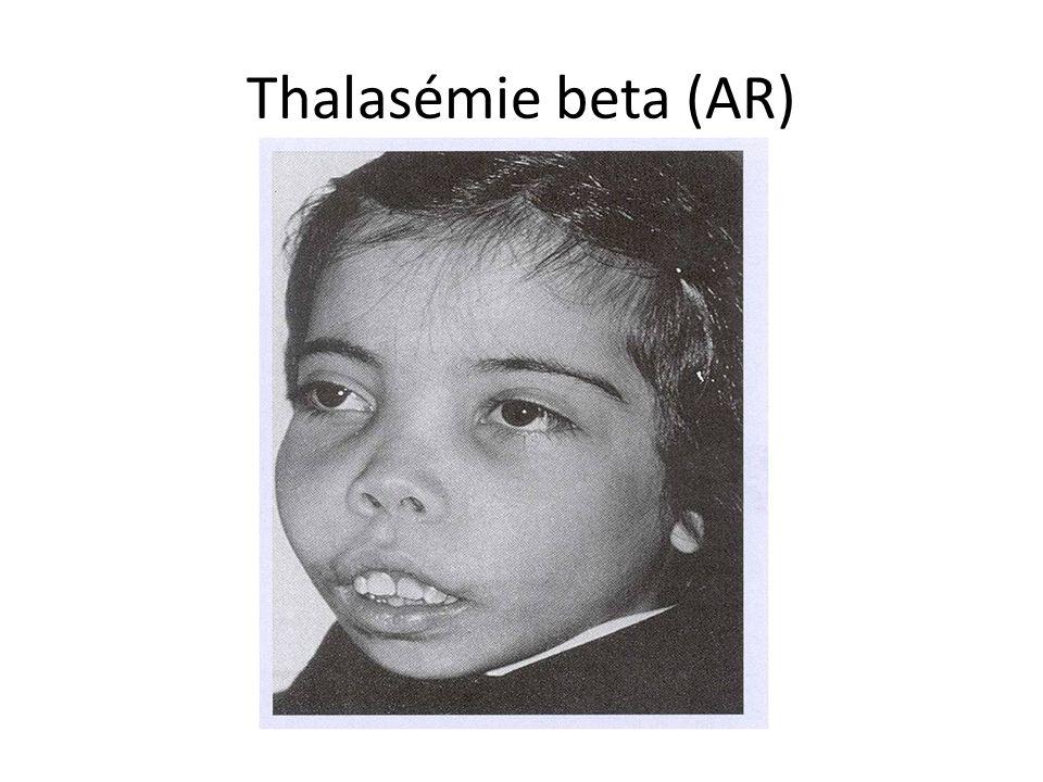 Thalasémie beta (AR)