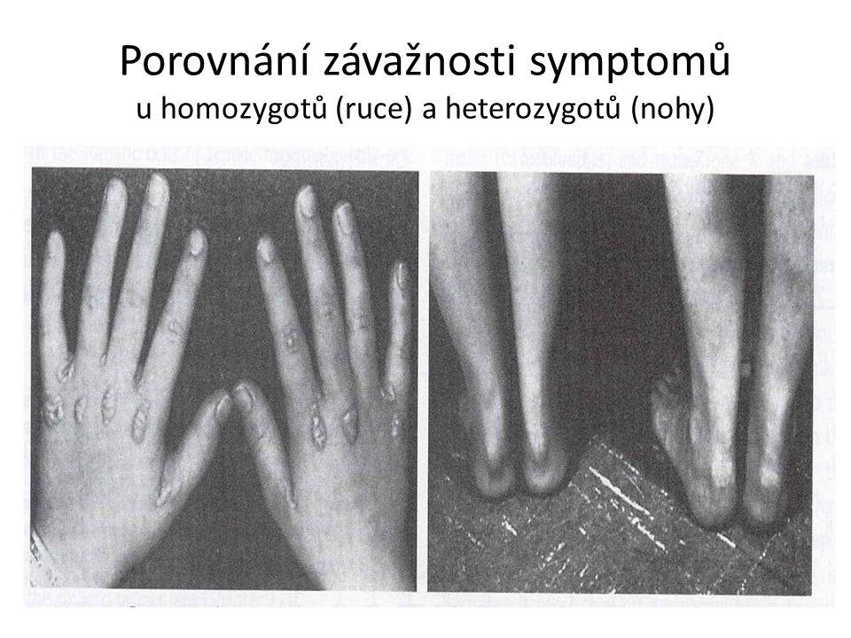 Porovnání závažnosti symptomů u homozygotů (ruce) a heterozygotů (nohy)