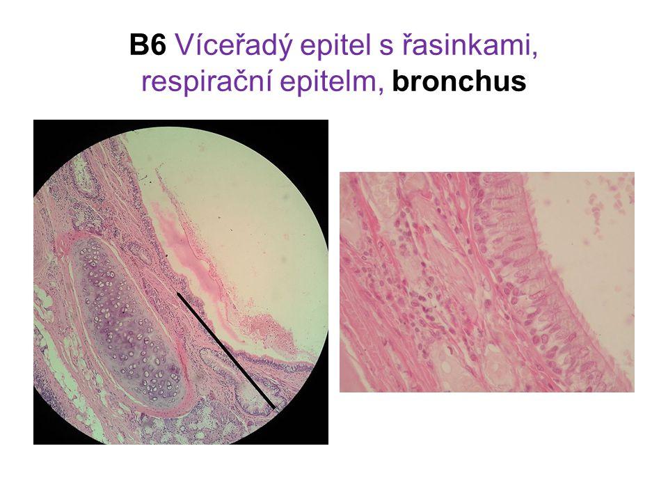 B6 Víceřadý epitel s řasinkami, respirační epitelm, bronchus