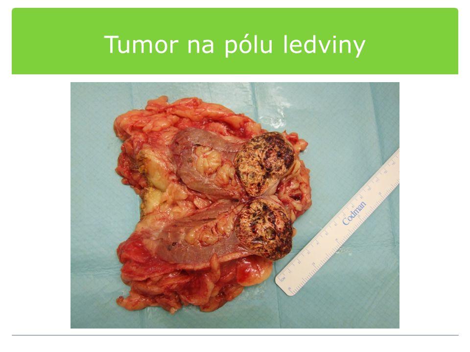 Tumor na pólu ledviny