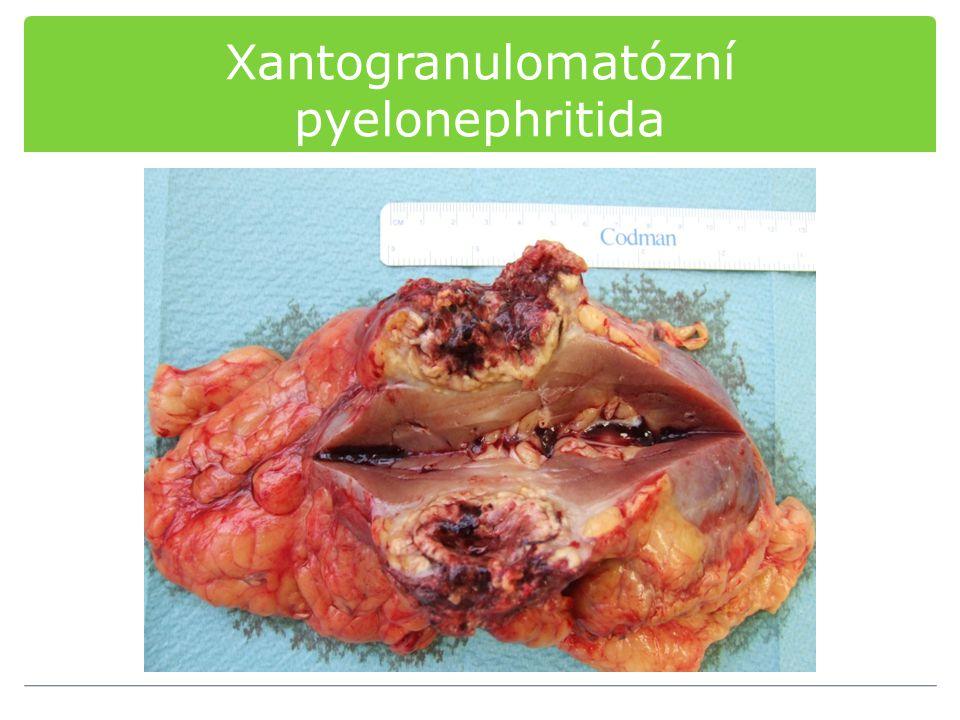 Xantogranulomatózní pyelonephritida