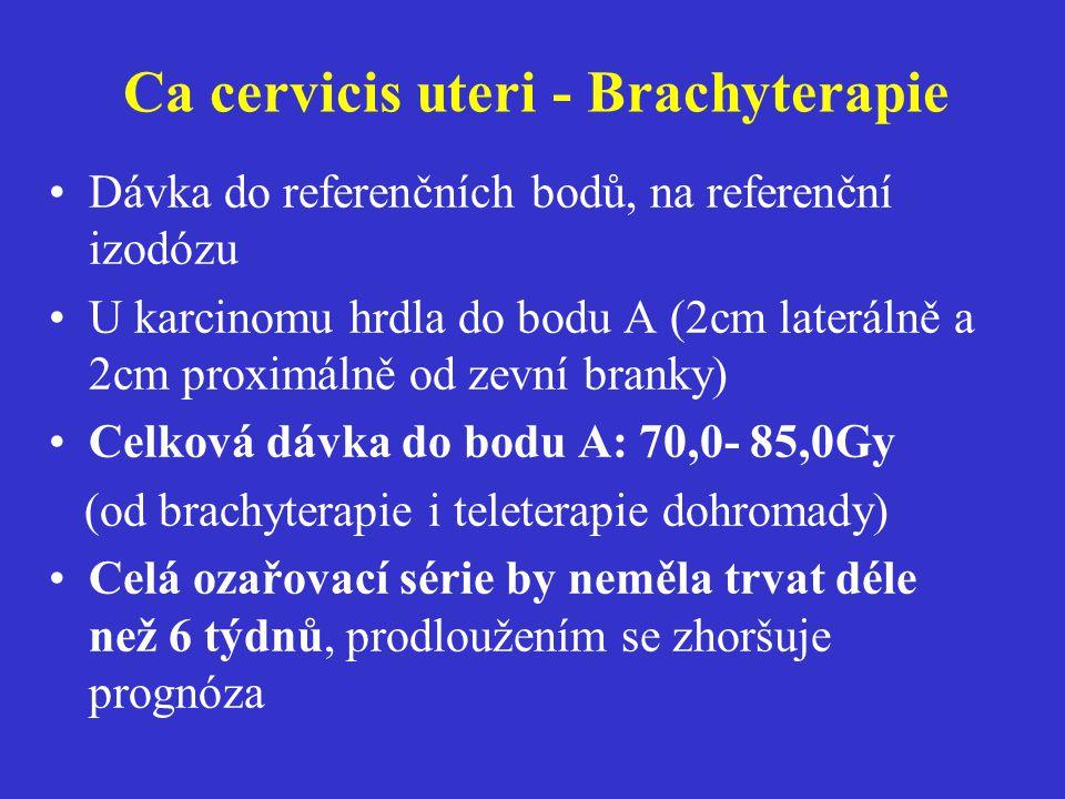Ca cervicis uteri - Brachyterapie