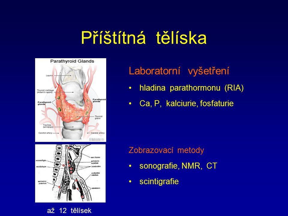 Příštítná tělíska Laboratorní vyšetření hladina parathormonu (RIA)