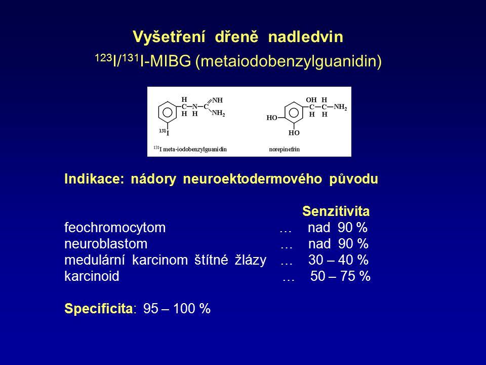 Vyšetření dřeně nadledvin 123I/131I-MIBG (metaiodobenzylguanidin)