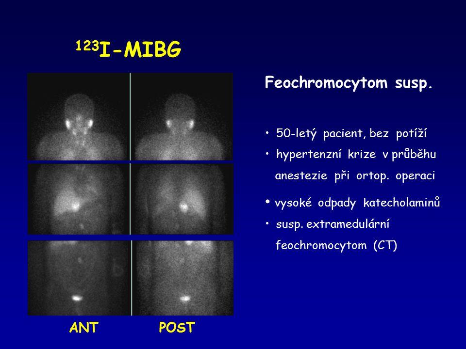 123I-MIBG Feochromocytom susp. vysoké odpady katecholaminů ANT POST