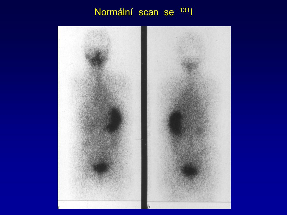 Normální scan se 131I