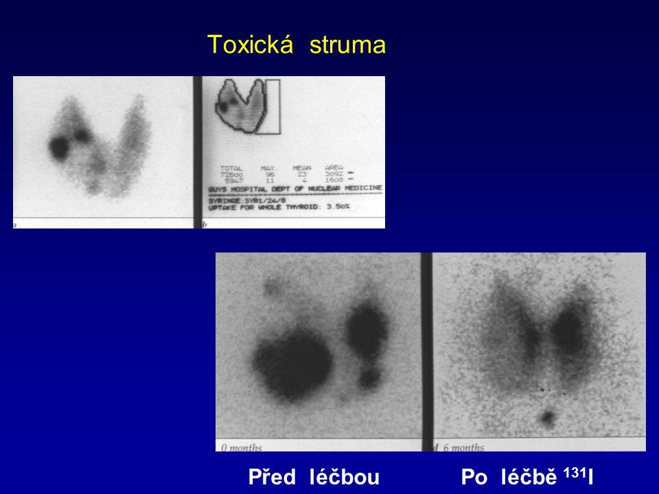 Toxická struma Před léčbou Po léčbě 131I
