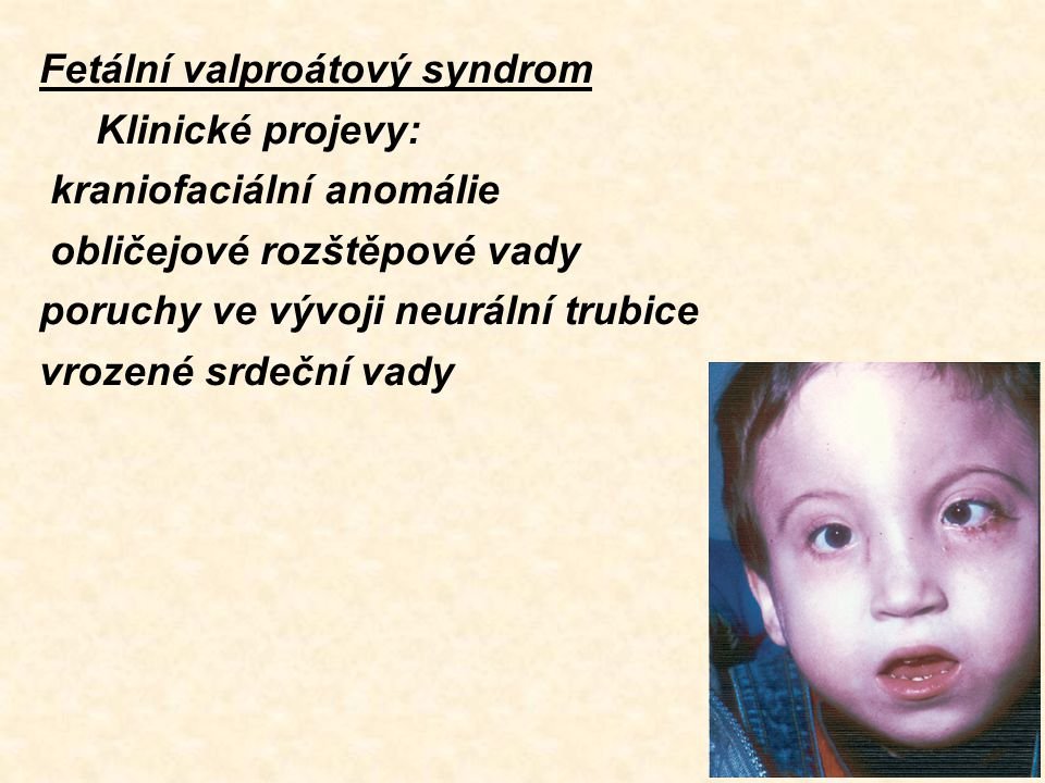 Fetální valproátový syndrom