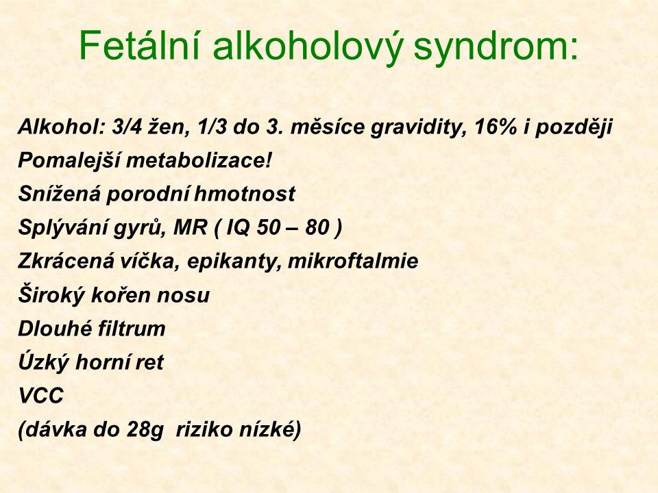 Fetální alkoholový syndrom: