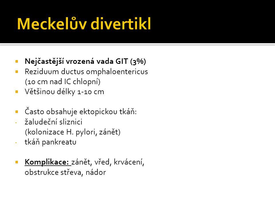 Meckelův divertikl Nejčastější vrozená vada GIT (3%)