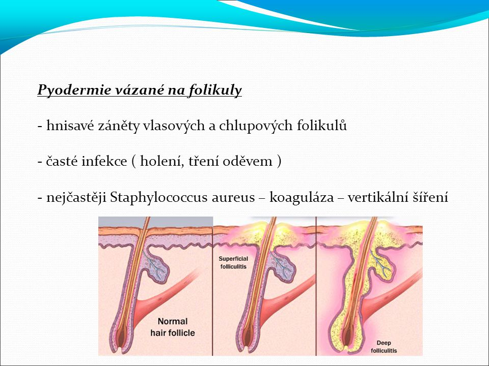 Pyodermie vázané na folikuly