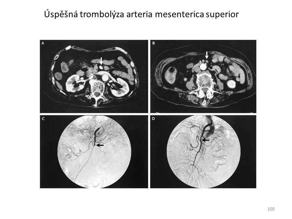 Úspěšná trombolýza arteria mesenterica superior
