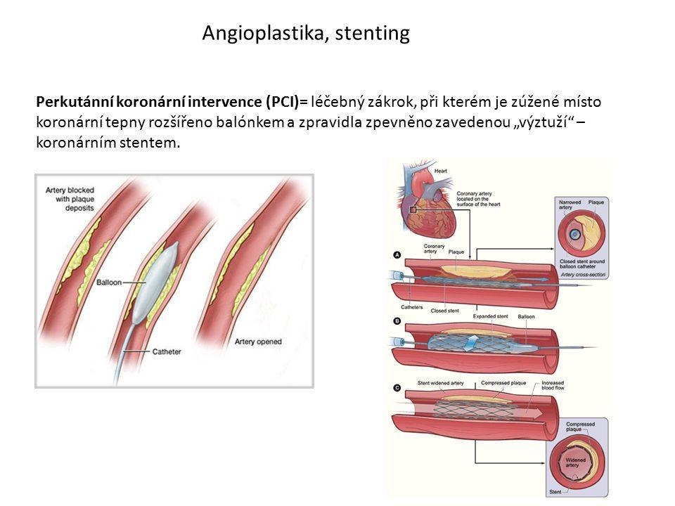 Angioplastika, stenting