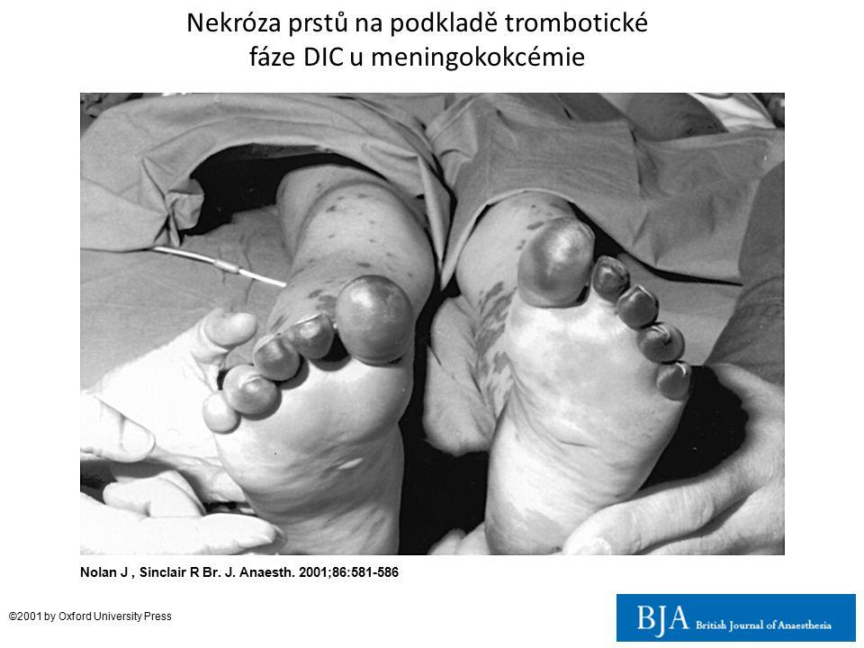 Nekróza prstů na podkladě trombotické fáze DIC u meningokokcémie