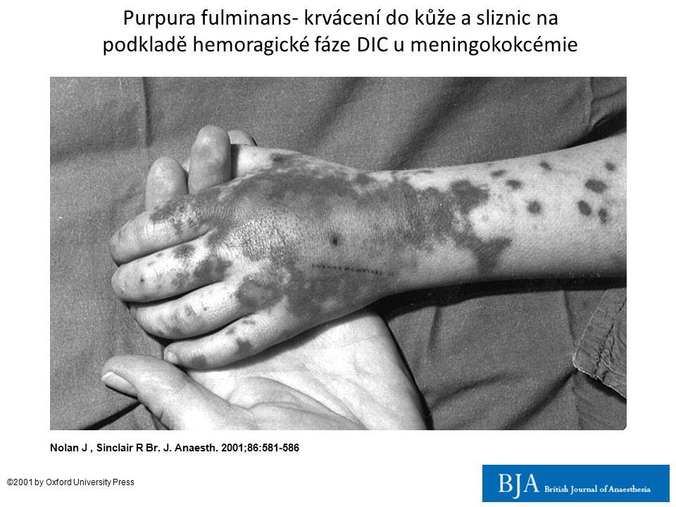 Purpura fulminans- krvácení do kůže a sliznic na podkladě hemoragické fáze DIC u meningokokcémie