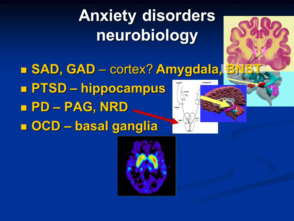 Anxiety disorders neurobiology