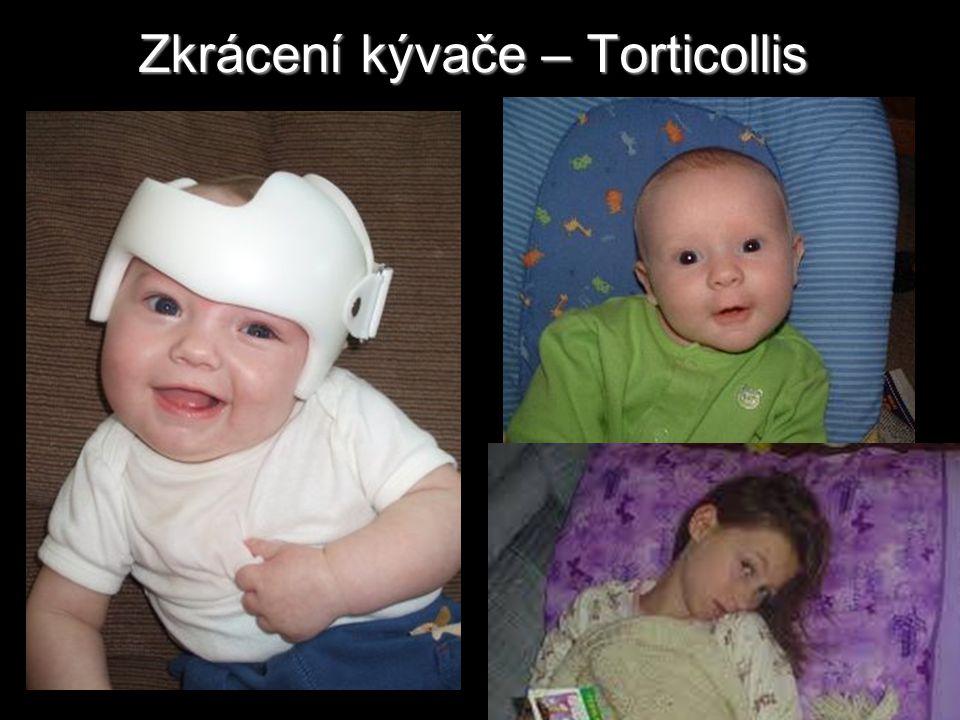 Zkrácení kývače – Torticollis