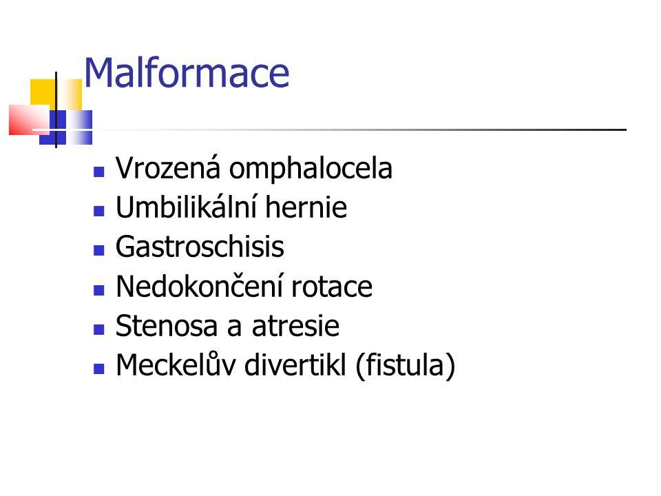 Malformace Vrozená omphalocela Umbilikální hernie Gastroschisis