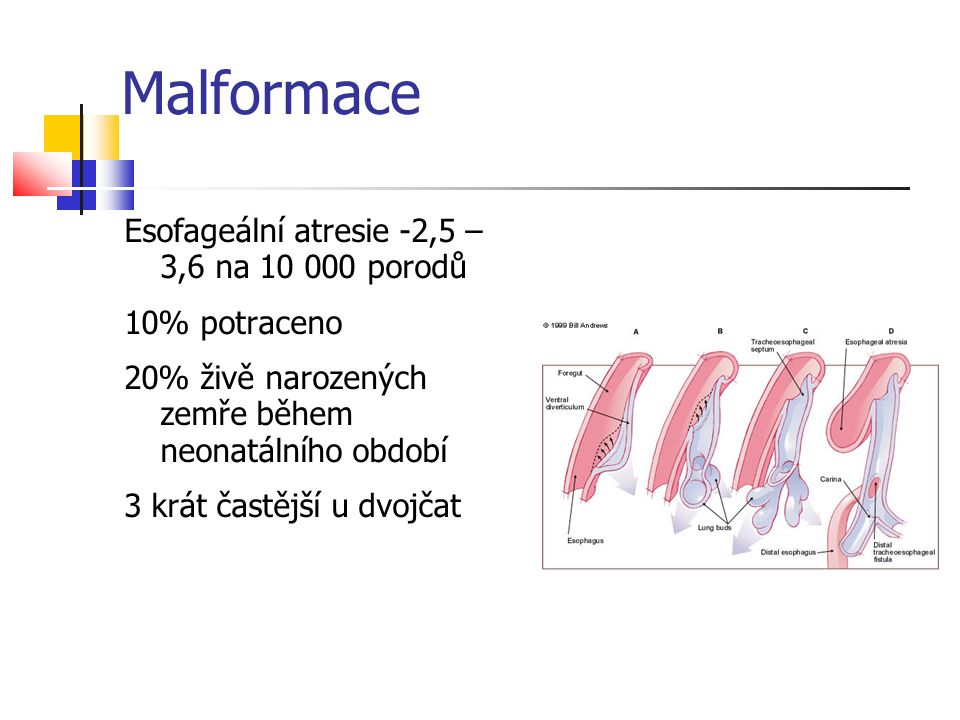 Malformace Esofageální atresie -2,5 – 3,6 na 10 000 porodů