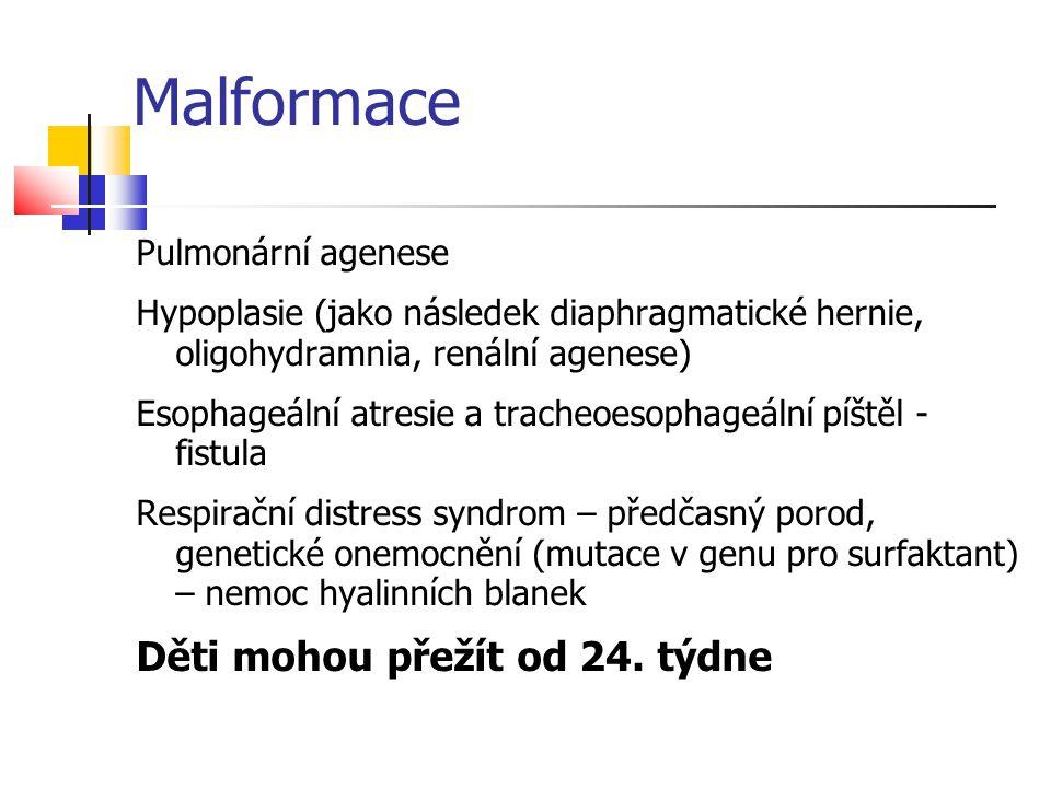 Malformace Děti mohou přežít od 24. týdne Pulmonární agenese