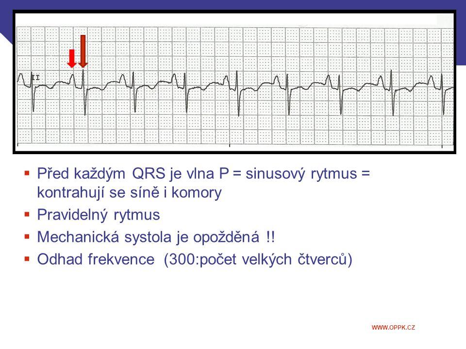Před každým QRS je vlna P = sinusový rytmus = kontrahují se síně i komory