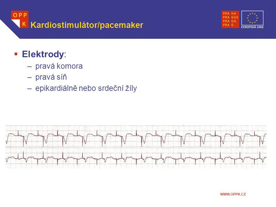 Kardiostimulátor/pacemaker