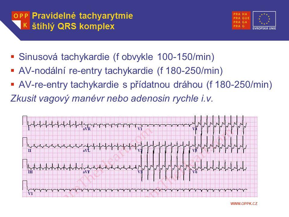 Pravidelné tachyarytmie štíhlý QRS komplex