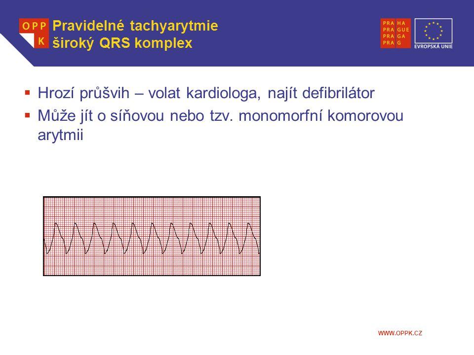 Pravidelné tachyarytmie široký QRS komplex