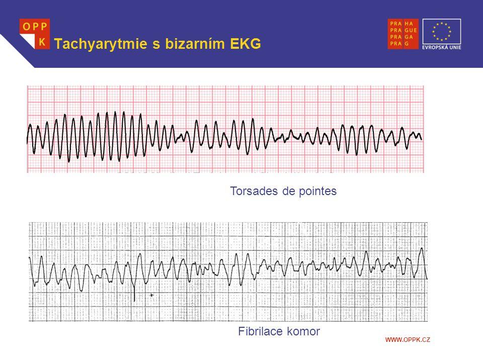 Tachyarytmie s bizarním EKG