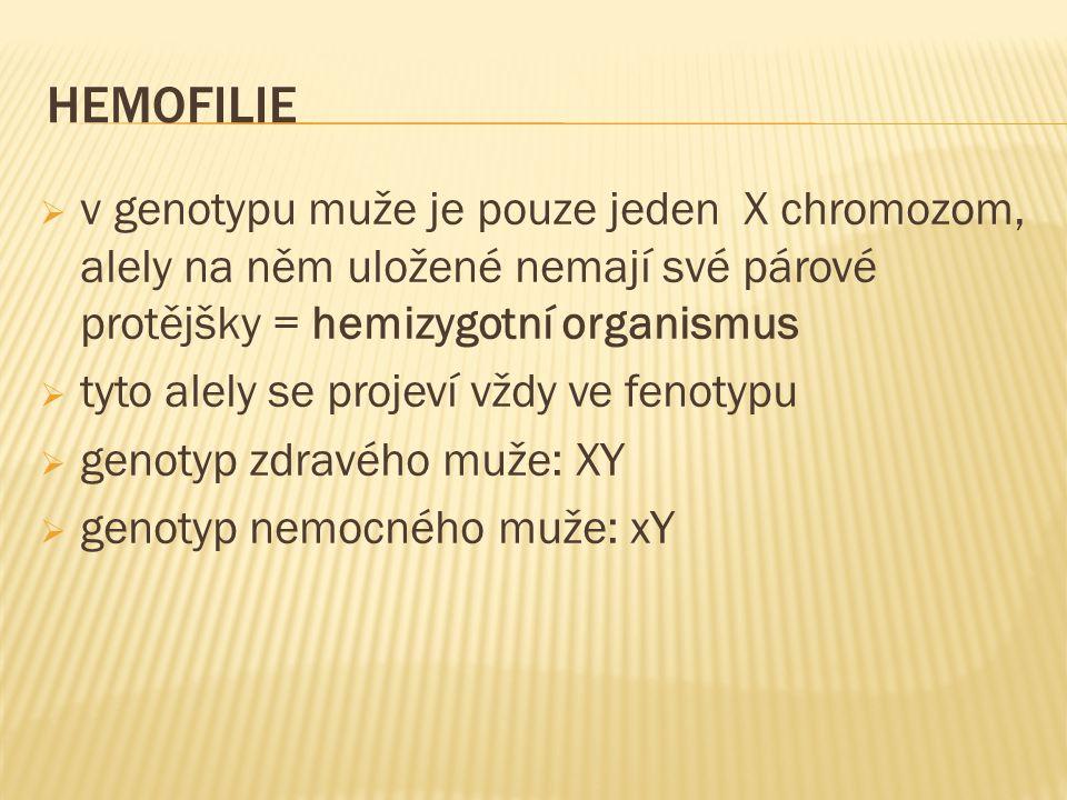 HEMOFILIE v genotypu muže je pouze jeden X chromozom, alely na něm uložené nemají své párové protějšky = hemizygotní organismus.