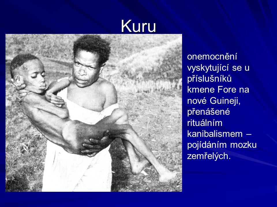 Kuru onemocnění vyskytující se u příslušníků kmene Fore na nové Guineji, přenášené rituálním kanibalismem – pojídáním mozku zemřelých.