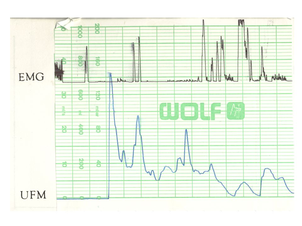 Synchronní záznam uroflow a elektromyografie – dyssynergní, přerušovaná mikce