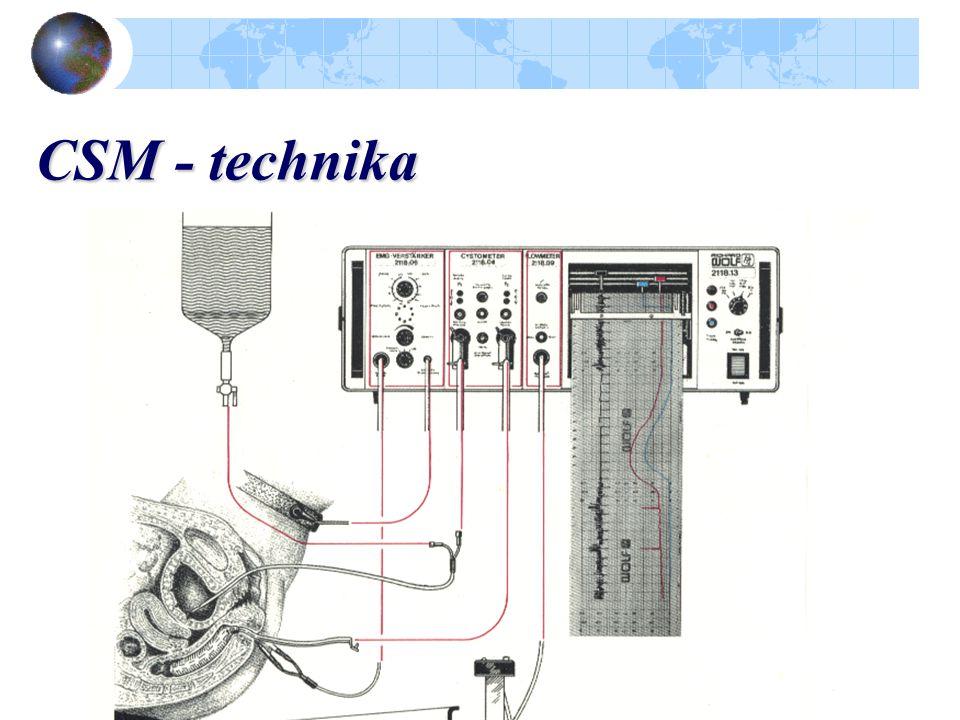 CSM - technika