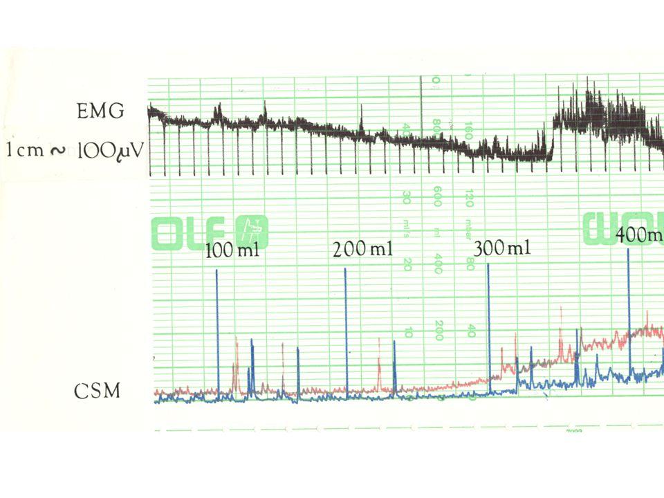 Synchronní záznam elektromyografie a plnící cystometrie