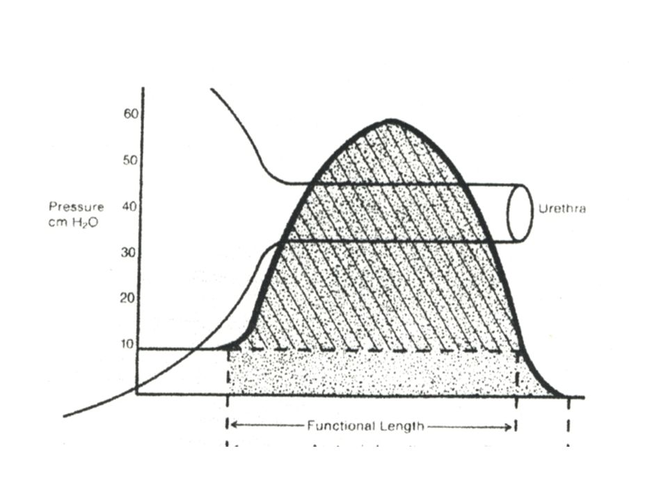 Uzavírací tlakový profil uretry – klidový stav (tzv. resting profile )