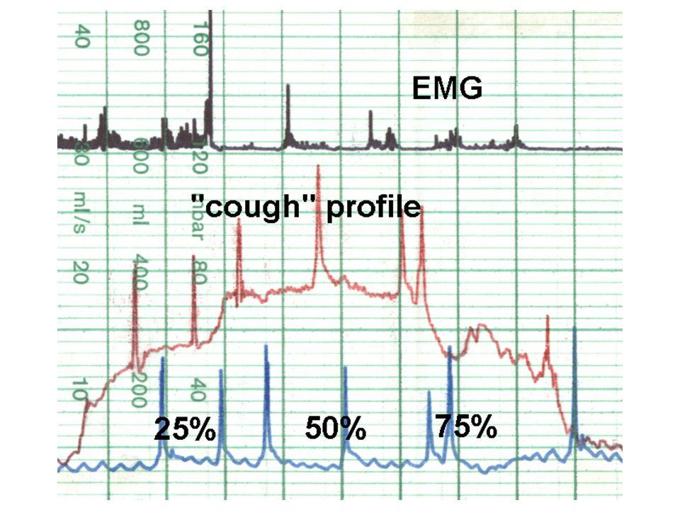 Synchronní záznam tlakových změn v měchýři (modře) a v uretře (červeně) při vzestupu intraabdominálního tlaku , tzv.stresový profil uretry, spolu s elektromyografií.