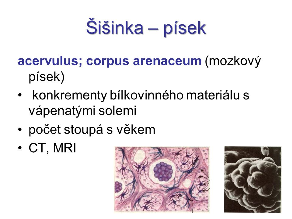 Šišinka – písek acervulus; corpus arenaceum (mozkový písek)