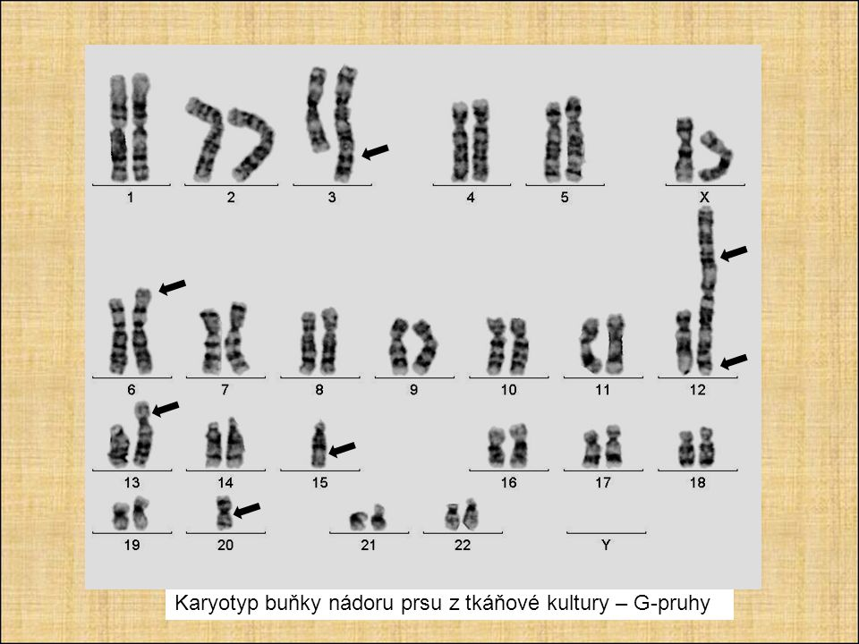 Karyotyp buňky nádoru prsu z tkáňové kultury – G-pruhy