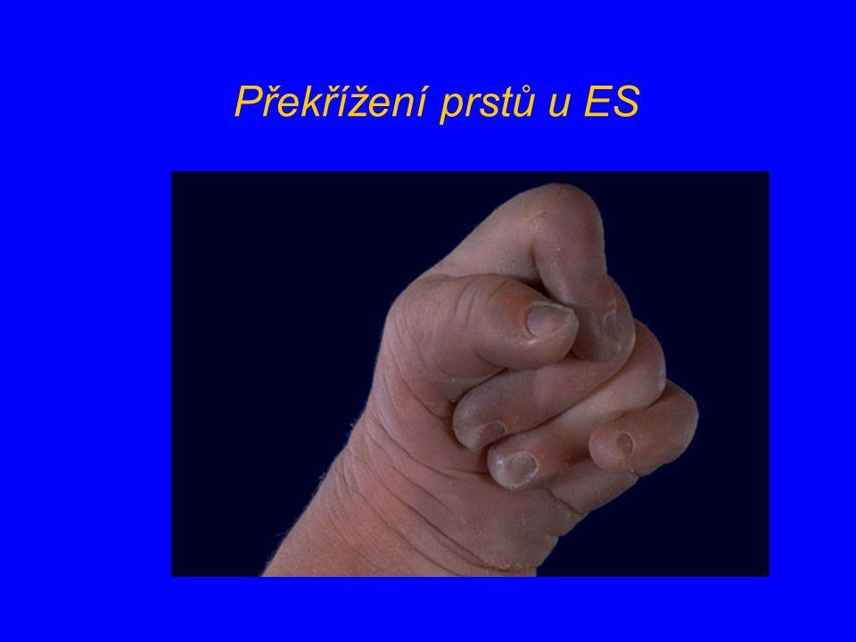 Překřížení prstů u ES