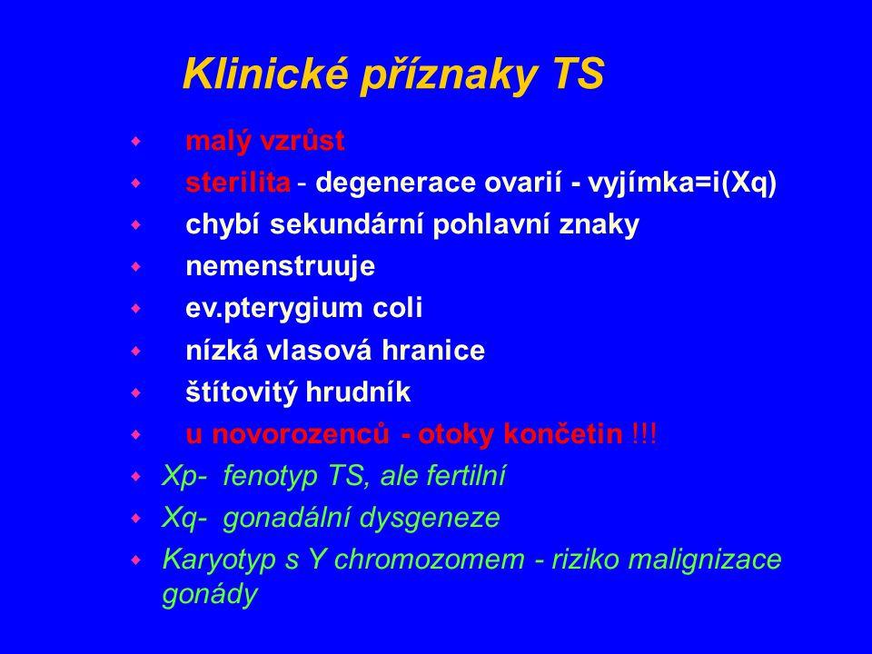 Klinické příznaky TS malý vzrůst