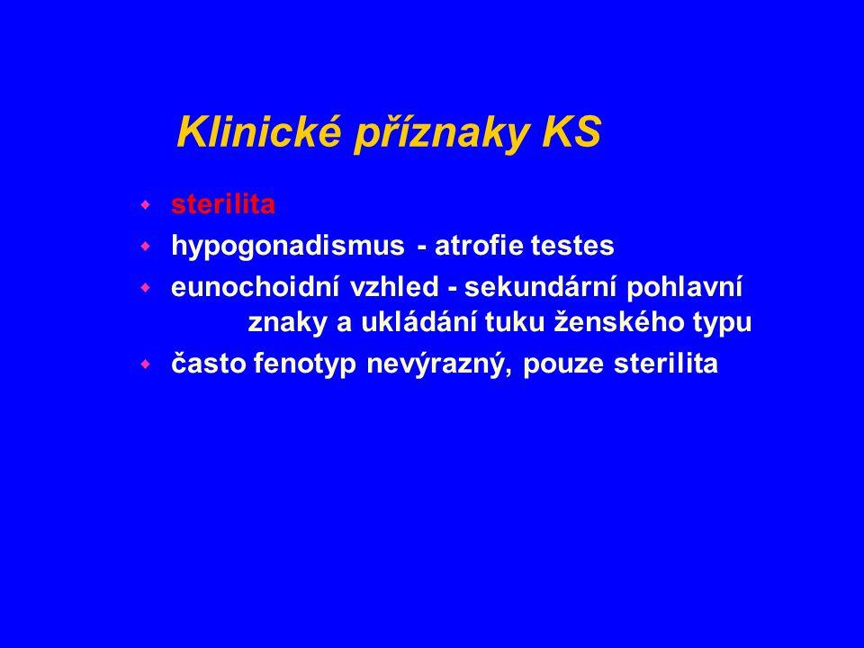 Klinické příznaky KS sterilita hypogonadismus - atrofie testes
