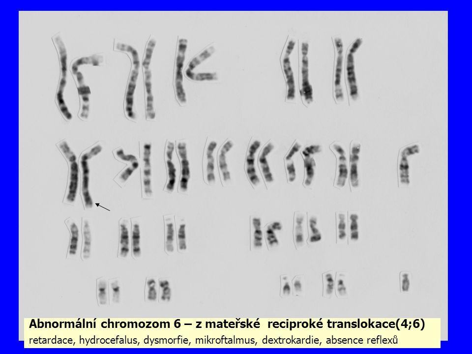 Abnormální chromozom 6 – z mateřské reciproké translokace(4;6)