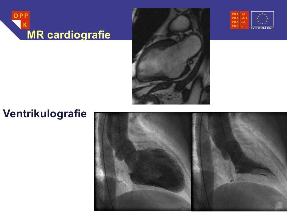 MR cardiografie Ventrikulografie